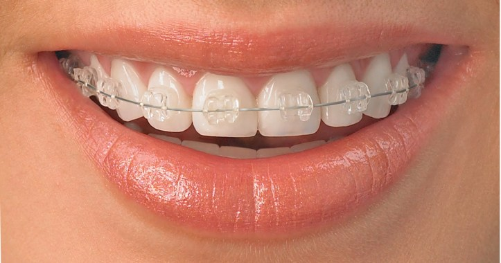 Ceramic_braces